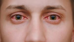 Kontrolloni: Sytë zbulojnë nëse keni koronavirus